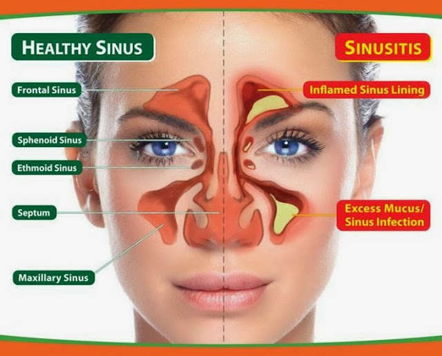 sinusitis-chronic-sinusitis